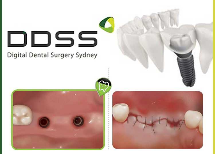 Digital Dental Surgery Sydney