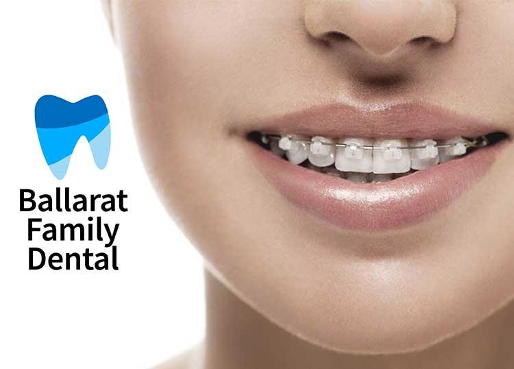 Ballarat Family Dental