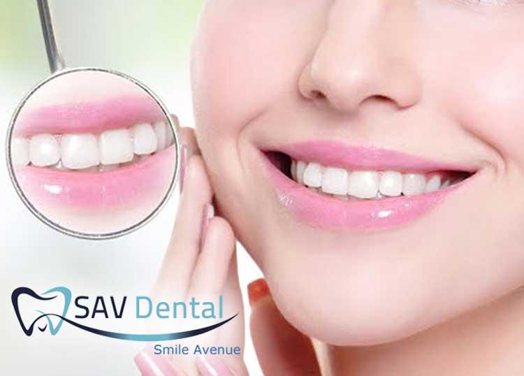 Sav Dental