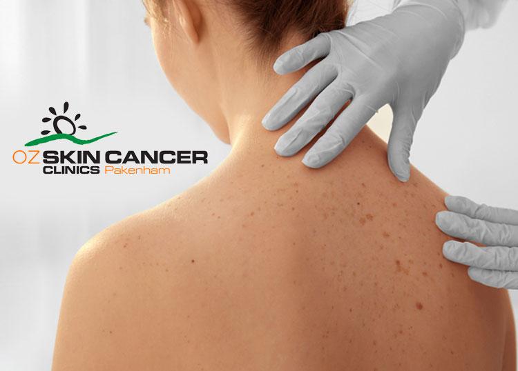 OZ Skin Cancer Clinics Pakenham
