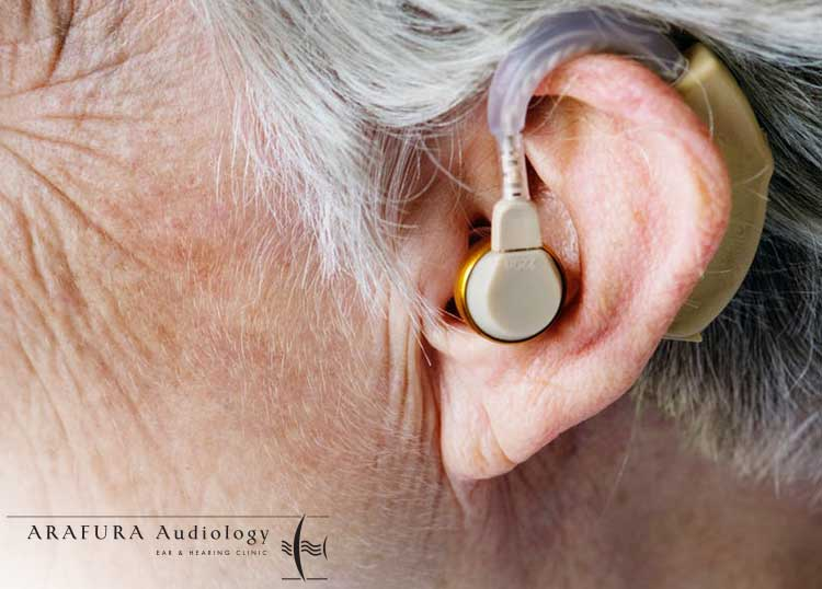 Alice Audiology
