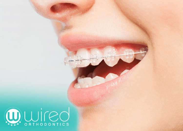Wired Orthodontists