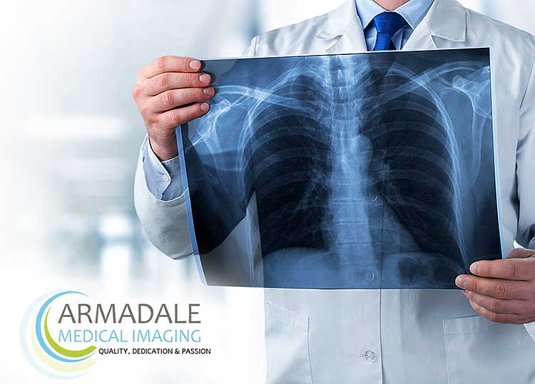 Armadale Medical Imaging