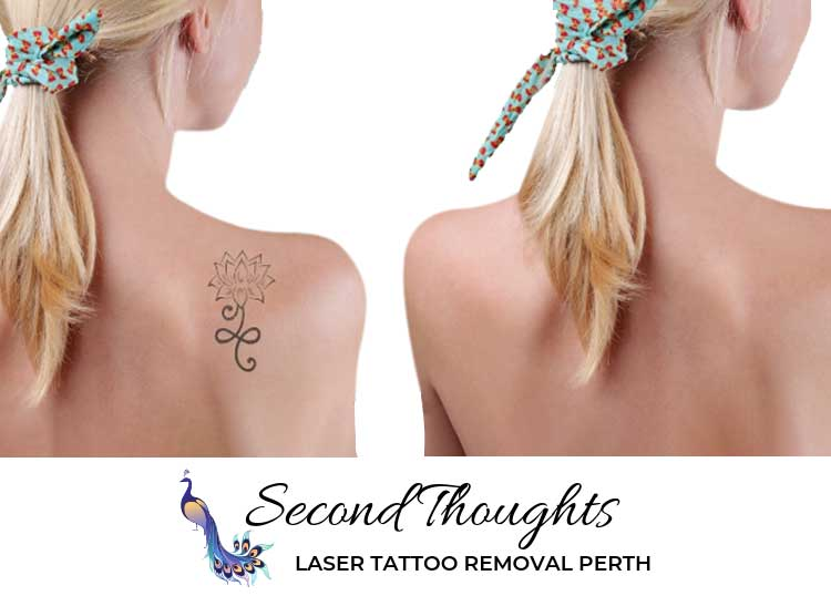 Second Thought Laser Tattoo Removal