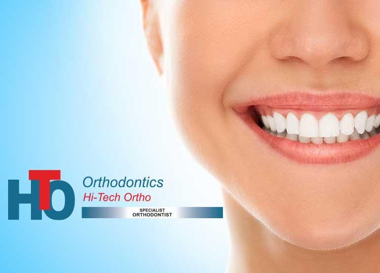 Hi-Tech Orthodontics
